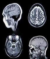 en riktig mri mra av hjärnans kärl foto