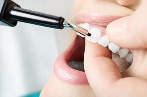 tänder vitalitet undersökning. närbild foto