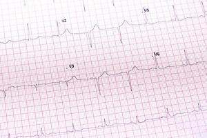 elektrokardiogram närbild foto