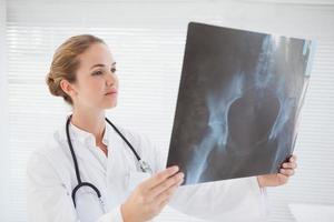 fokuserad läkare tittar på röntgen foto
