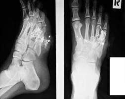 samling av röntgen foto