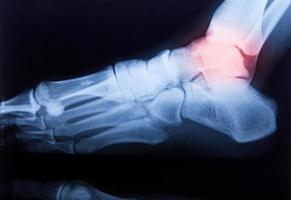 fotled och knäledsmärta mänsklig röntgen-mri-film foto