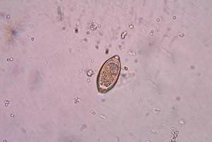 trichuris trichiura parasit. foto