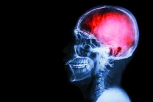 """röntgenskalle & cervikal ryggrad (lateral) med """"stroke"""" foto"""