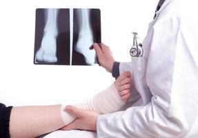 läkare undersöker en röntgenbild av förstuvad fot foto