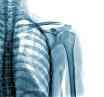 foto av röntgen