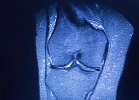 mri magnetisk resonansavbildning medicinsk genomsökning foto