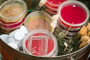 petriskålar och provrör foto