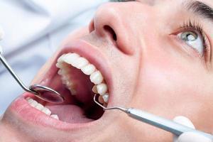 ung man som vitnar tänder hos tandläkaren. foto