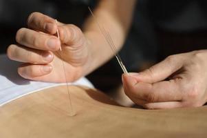 akupunktur. kinesisk medicinbehandlare foto