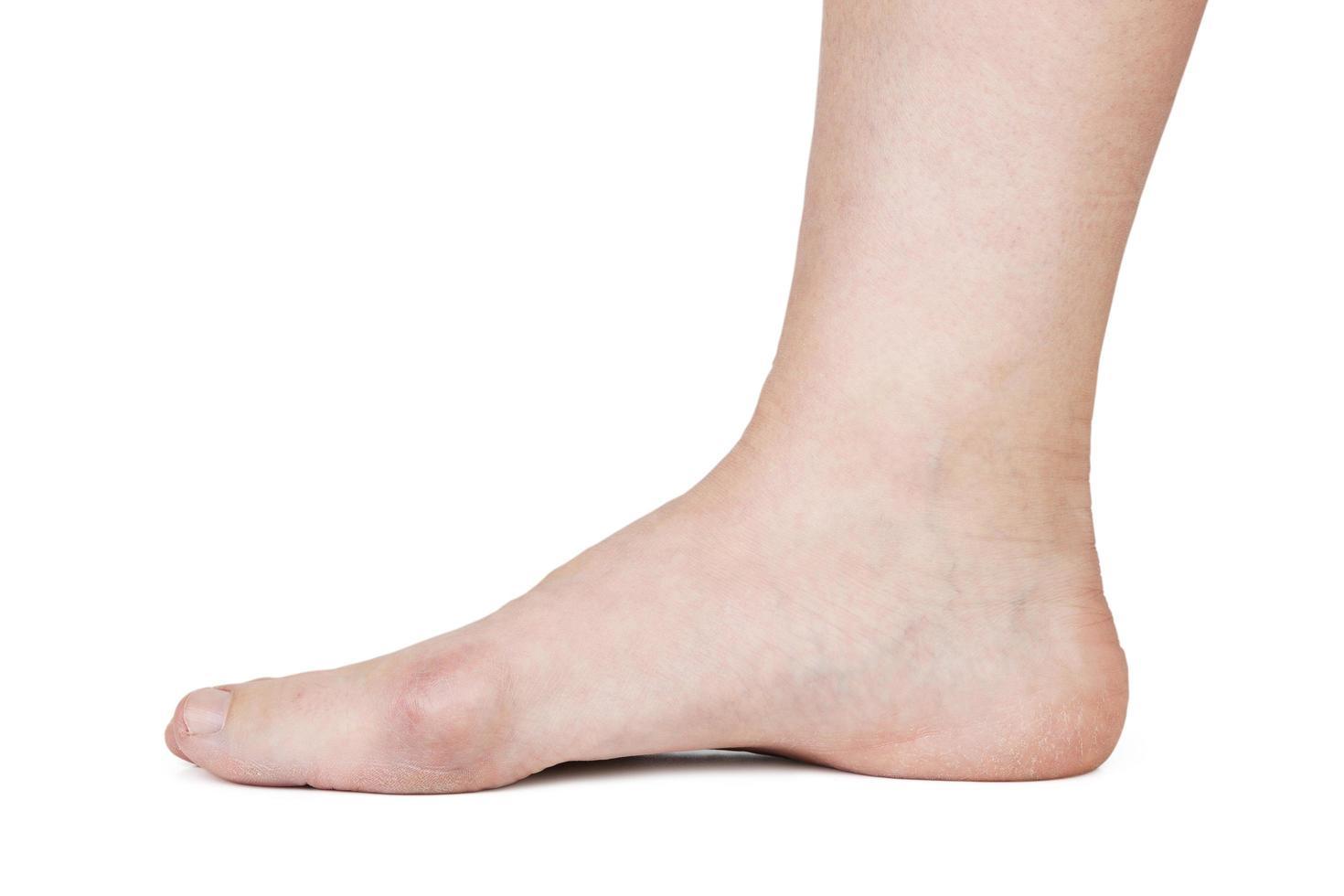 menselijke voet met hallux valgus foto