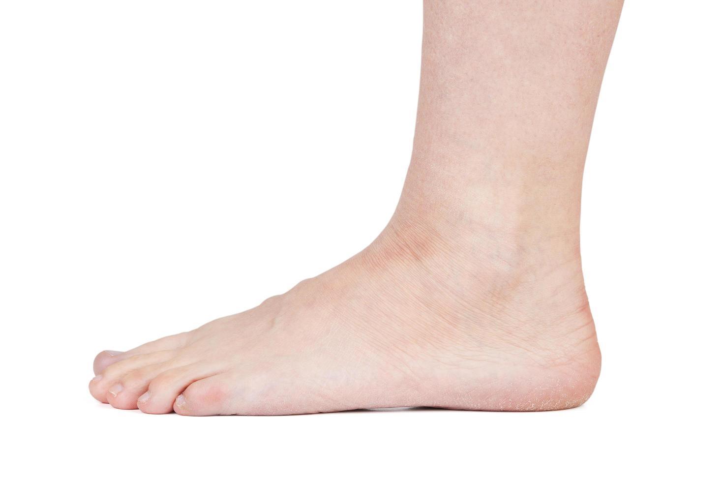voet van man met droge huid op een witte achtergrond foto
