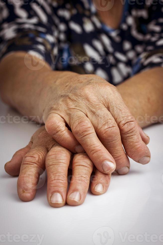 handen van vrouw vervormd door reumatoïde artritis foto