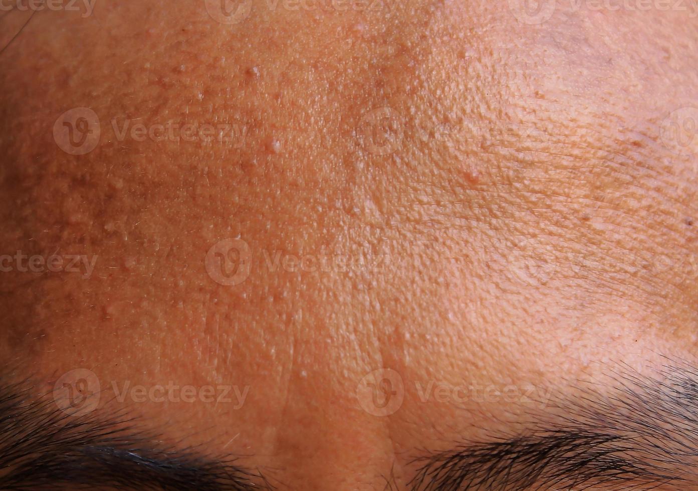 acne voorhoofd foto