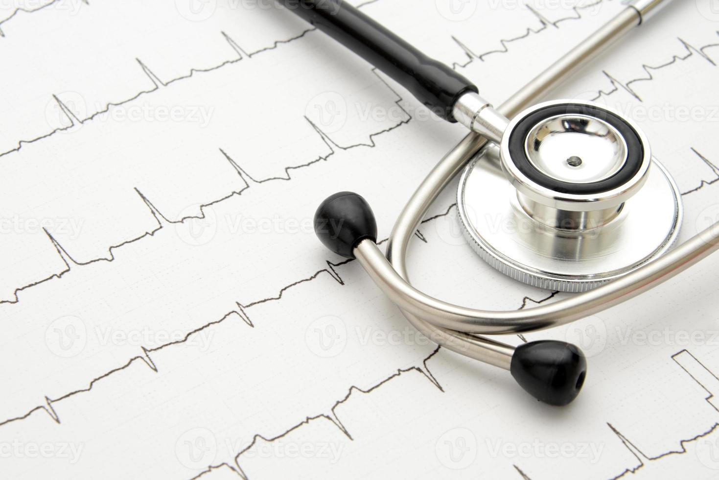 stethoscoop op elektrocardiogram foto