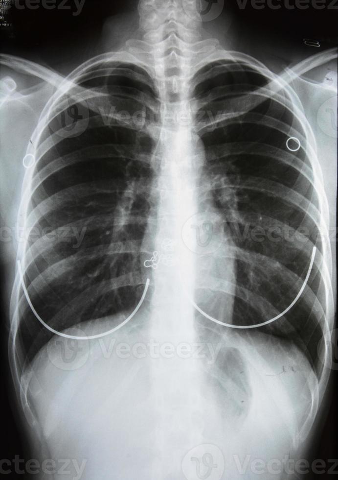 röntgenfoto van de menselijke borst foto