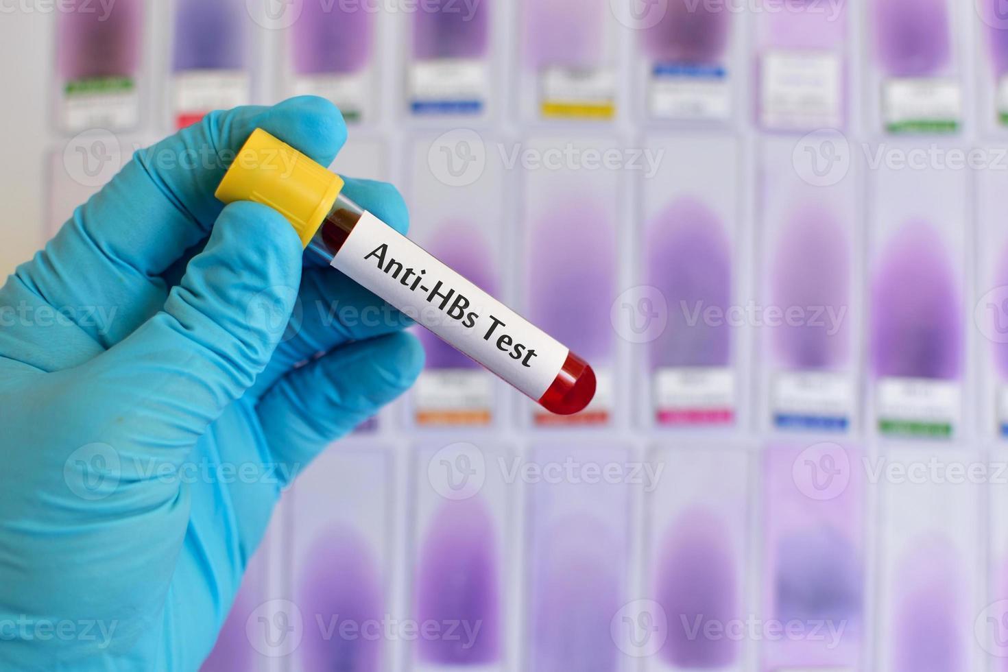 hepatitis b-oppervlakte-antilichaamtesten (anti-hbs) foto