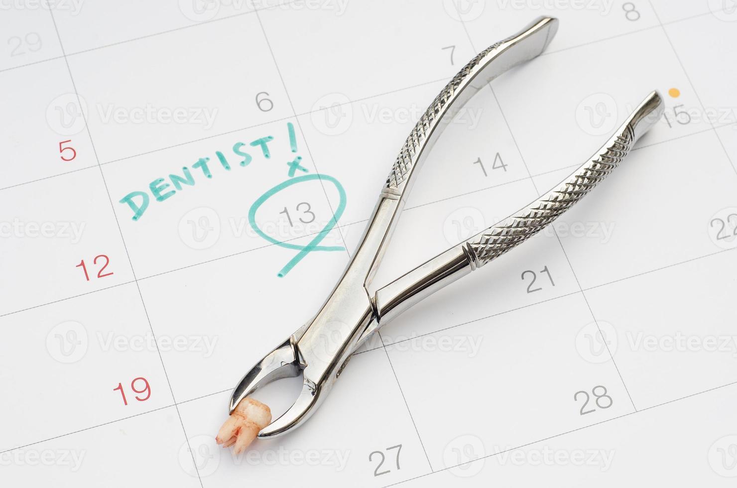 nota van afspraak tandarts op kalender, extractie van tand foto