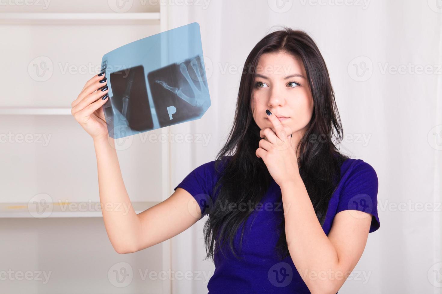 meisje kijkt naar de röntgenfoto van haar handen botten foto