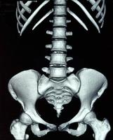 abdominale röntgenfoto foto