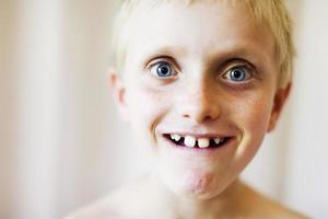 verbaasde, goofy grijns op het brede gezicht van de jongen met grote tanden foto