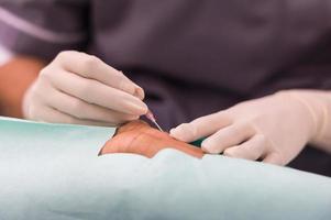 punctie radiale slagader voor arteriële lijnmonitor foto