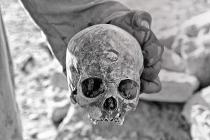 man met een schedel