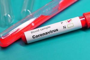 coronavirus reageerbuizen
