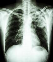 film thoraxfoto toont alveolair infiltraat in linker bovenste long als gevolg van mycobacterium tuberculosis infectie longtuberculose foto