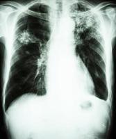 film thoraxfoto toont alveolair infiltraat bij linker bovenlong en rechter middenlong door mycobacterium tuberculosis infectie longtuberculose foto
