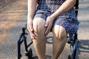 Aziatische senior of oudere oude dame vrouw patiënt Toon haar littekens chirurgische totale kniegewricht vervanging hechtdraad wond chirurgie artroplastiek in het ziekenhuis. foto