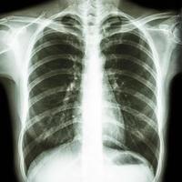 film thoraxfoto toont de borst van een normale mens foto