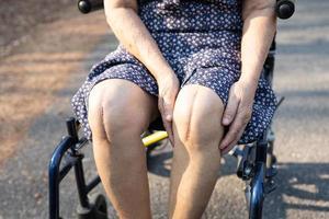 Aziatische senior of oudere oude dame vrouw patiënt Toon haar littekens chirurgische totale kniegewricht vervanging hechtdraad wond chirurgie artroplastiek op bed in verpleegafdeling ziekenhuis gezond sterk medisch concept. foto