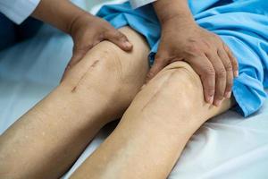 Aziatische senior of oudere oude dame vrouw patiënt toont haar littekens chirurgische totale kniegewricht vervanging hechtdraad wond chirurgie artroplastiek op bed in verpleegafdeling ziekenhuis, gezond sterk medisch concept. foto