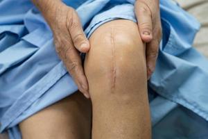 Aziatische senior oman patiënt laat haar littekens zien chirurgische totale knie foto
