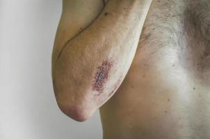 de jonge man raakte gewond tijdens het sporten. foto