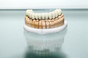 zirkonium porseleinen tandplaat in tandartswinkel foto