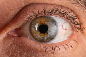 een oudere man oog close-up, oog met gediagnosticeerde keratoconus cornea dunner worden. foto