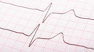 cardiogram van hartimpulsen, hypertone ziekteconcept. foto