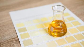 een flesje met urine. diagnostiek door de kleur van urine foto