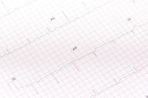 elektrocardiogram close-up foto