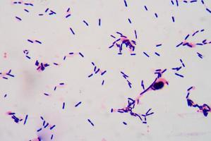 bacteriën sluiten foto