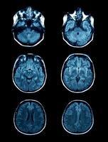 MRI scan foto