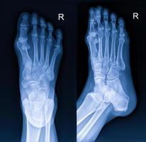 röntgenfoto van de voet foto