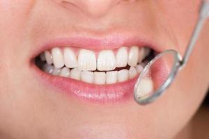 tandheelkundige inspectie foto