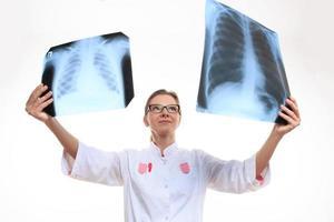arts vergelijkt de twee röntgenfoto's foto