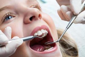 jong meisje bij de tandarts. foto
