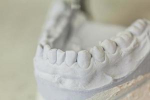 tandheelkundige mallen van menselijke tanden foto