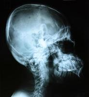 röntgenfoto van het hoofd foto