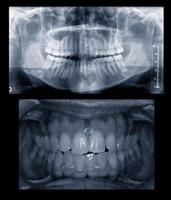 tandheelkundige röntgenonderzoek foto